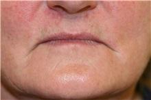 Lip Augmentation / Enhancement Before Photo by Steve Laverson, MD; San Diego, CA - Case 37988