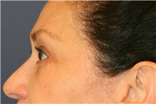 Eyelid Surgery After Photo by Steve Laverson, MD; San Diego, CA - Case 38178