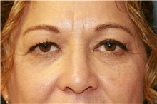 Eyelid Surgery Before Photo by Steve Laverson, MD; San Diego, CA - Case 38284