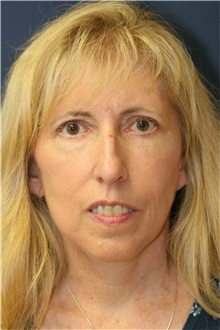 Facelift After Photo by Steve Laverson, MD; San Diego, CA - Case 38575
