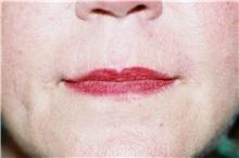 Lip Augmentation / Enhancement After Photo by Steve Laverson, MD; San Diego, CA - Case 38604