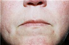 Lip Augmentation / Enhancement Before Photo by Steve Laverson, MD; San Diego, CA - Case 38604