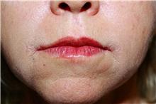 Lip Augmentation / Enhancement After Photo by Steve Laverson, MD; San Diego, CA - Case 38611