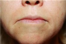 Lip Augmentation / Enhancement Before Photo by Steve Laverson, MD; San Diego, CA - Case 38611
