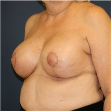 Breast Lift After Photo by Steve Laverson, MD; San Diego, CA - Case 38805