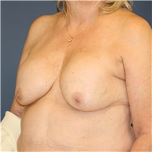 Breast Lift Before Photo by Steve Laverson, MD; San Diego, CA - Case 38805