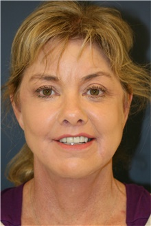 Facelift After Photo by Steve Laverson, MD; San Diego, CA - Case 38820