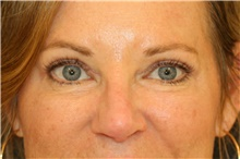 Eyelid Surgery After Photo by Steve Laverson, MD; San Diego, CA - Case 38853