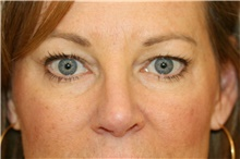 Eyelid Surgery Before Photo by Steve Laverson, MD; San Diego, CA - Case 38853