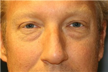 Eyelid Surgery Before Photo by Steve Laverson, MD; San Diego, CA - Case 38893