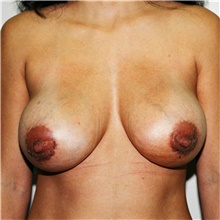 Breast Implant Revision After Photo by Steve Laverson, MD; San Diego, CA - Case 38952