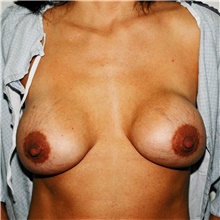 Breast Implant Revision Before Photo by Steve Laverson, MD; San Diego, CA - Case 38952