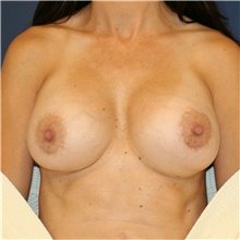 Breast Implant Revision After Photo by Steve Laverson, MD; San Diego, CA - Case 38966