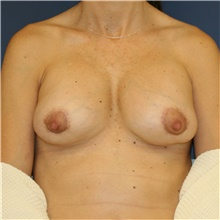 Breast Implant Revision Before Photo by Steve Laverson, MD; San Diego, CA - Case 38966