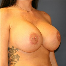 Breast Implant Revision After Photo by Steve Laverson, MD; San Diego, CA - Case 38967