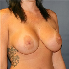 Breast Implant Revision Before Photo by Steve Laverson, MD; San Diego, CA - Case 38967