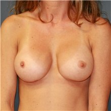 Breast Implant Revision After Photo by Steve Laverson, MD; San Diego, CA - Case 38977