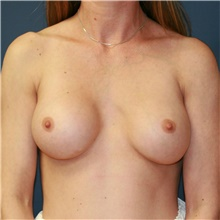 Breast Implant Revision Before Photo by Steve Laverson, MD; San Diego, CA - Case 38977