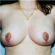 Breast Reduction After Photo by Steve Laverson, MD; San Diego, CA - Case 39000