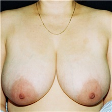 Breast Reduction Before Photo by Steve Laverson, MD; San Diego, CA - Case 39000