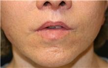Lip Augmentation / Enhancement After Photo by Steve Laverson, MD; San Diego, CA - Case 39029