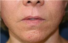 Lip Augmentation / Enhancement Before Photo by Steve Laverson, MD; San Diego, CA - Case 39029