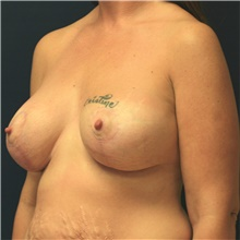Breast Lift After Photo by Steve Laverson, MD; San Diego, CA - Case 39077