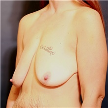 Breast Lift Before Photo by Steve Laverson, MD; San Diego, CA - Case 39077