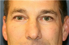 Eyelid Surgery After Photo by Steve Laverson, MD; San Diego, CA - Case 39087