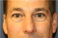 Eyelid Surgery Before Photo by Steve Laverson, MD; San Diego, CA - Case 39087