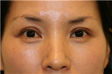 Eyelid Surgery After Photo by Steve Laverson, MD; San Diego, CA - Case 39088
