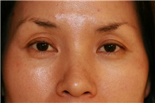 Eyelid Surgery Before Photo by Steve Laverson, MD; San Diego, CA - Case 39088