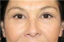 Eyelid Surgery After Photo by Steve Laverson, MD; San Diego, CA - Case 39094