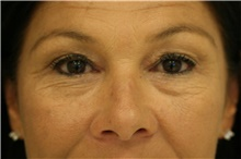 Eyelid Surgery Before Photo by Steve Laverson, MD; San Diego, CA - Case 39094