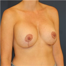Breast Lift After Photo by Steve Laverson, MD; San Diego, CA - Case 39105