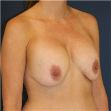 Breast Lift Before Photo by Steve Laverson, MD; San Diego, CA - Case 39105