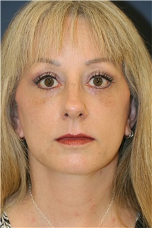 Facelift After Photo by Steve Laverson, MD; San Diego, CA - Case 39166