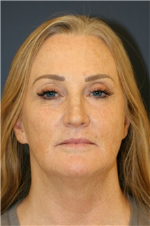 Facelift Before Photo by Steve Laverson, MD; San Diego, CA - Case 39176