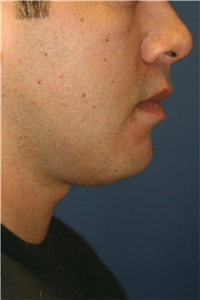 Neck Lift After Photo by Steve Laverson, MD; San Diego, CA - Case 39257