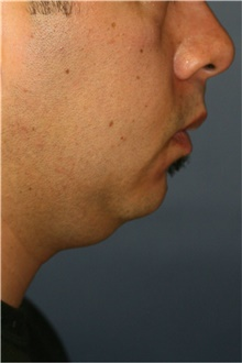Neck Lift Before Photo by Steve Laverson, MD; San Diego, CA - Case 39257