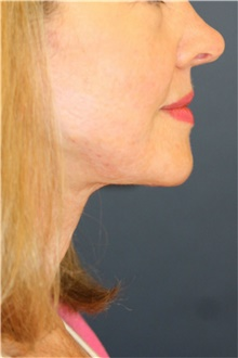 Neck Lift After Photo by Steve Laverson, MD; San Diego, CA - Case 39347