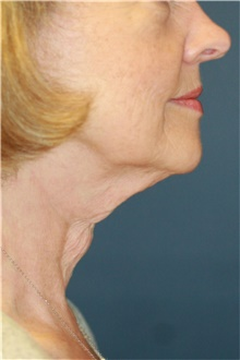 Neck Lift Before Photo by Steve Laverson, MD; San Diego, CA - Case 39347