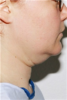 Neck Lift Before Photo by Steve Laverson, MD; San Diego, CA - Case 39360