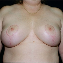 Breast Reduction After Photo by Steve Laverson, MD; San Diego, CA - Case 39362
