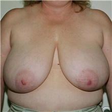 Breast Reduction Before Photo by Steve Laverson, MD; San Diego, CA - Case 39362
