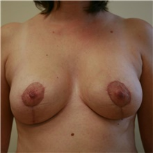 Breast Reduction After Photo by Steve Laverson, MD; San Diego, CA - Case 39363