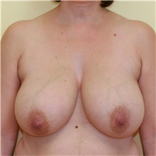 Breast Reduction Before Photo by Steve Laverson, MD; San Diego, CA - Case 39363