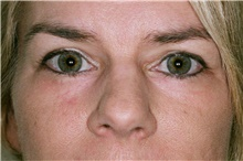 Eyelid Surgery After Photo by Steve Laverson, MD; San Diego, CA - Case 39395