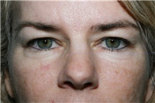 Eyelid Surgery Before Photo by Steve Laverson, MD; San Diego, CA - Case 39395