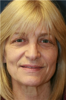 Laser Skin Resurfacing Before Photo by Steve Laverson, MD; San Diego, CA - Case 39549